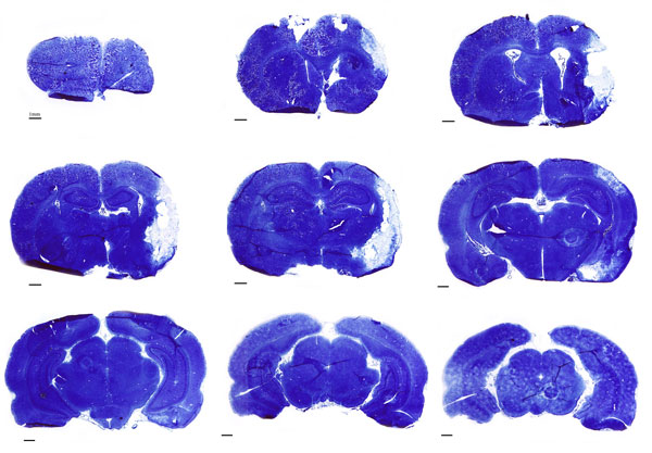 Histology of the brain in the permanent middle cerebral artery occlusion (MCAo) model