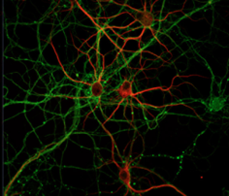 preservedneurons