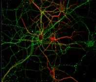 preservedneurons