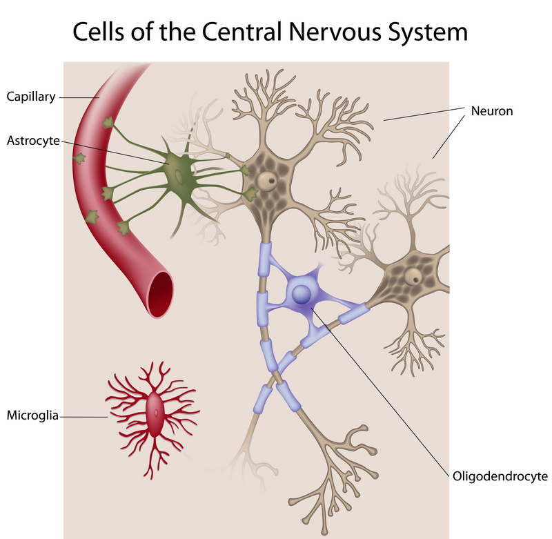 an overview of the disease of the nervous system multiple sclerosis Multiple sclerosis (ms) is an autoimmune disease that affects the brain and  spinal cord (central nervous system) multiple sclerosis.