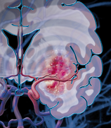 post-stroke neuroinflammation, preclinical MCAo, non-clinical CRO