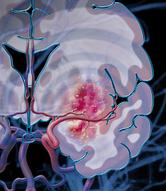 cerebral ischemic stroke, MCAo, 4VO, preclinical contract research, pre-clinical CRO