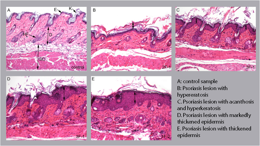 histology of the skin in the IMQ-induced psoriasis-like model of skin inflammation, preclinical CRO
