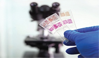 Glass-Slides-Histological-Evaluation.jpg