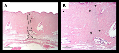 Sections of Incisional Wound Model in Pigs Histology Images H&E.png