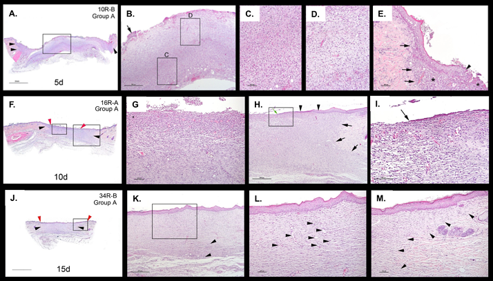 Sections of excisional wound model in STZ-induced diabetic rats H&E .png
