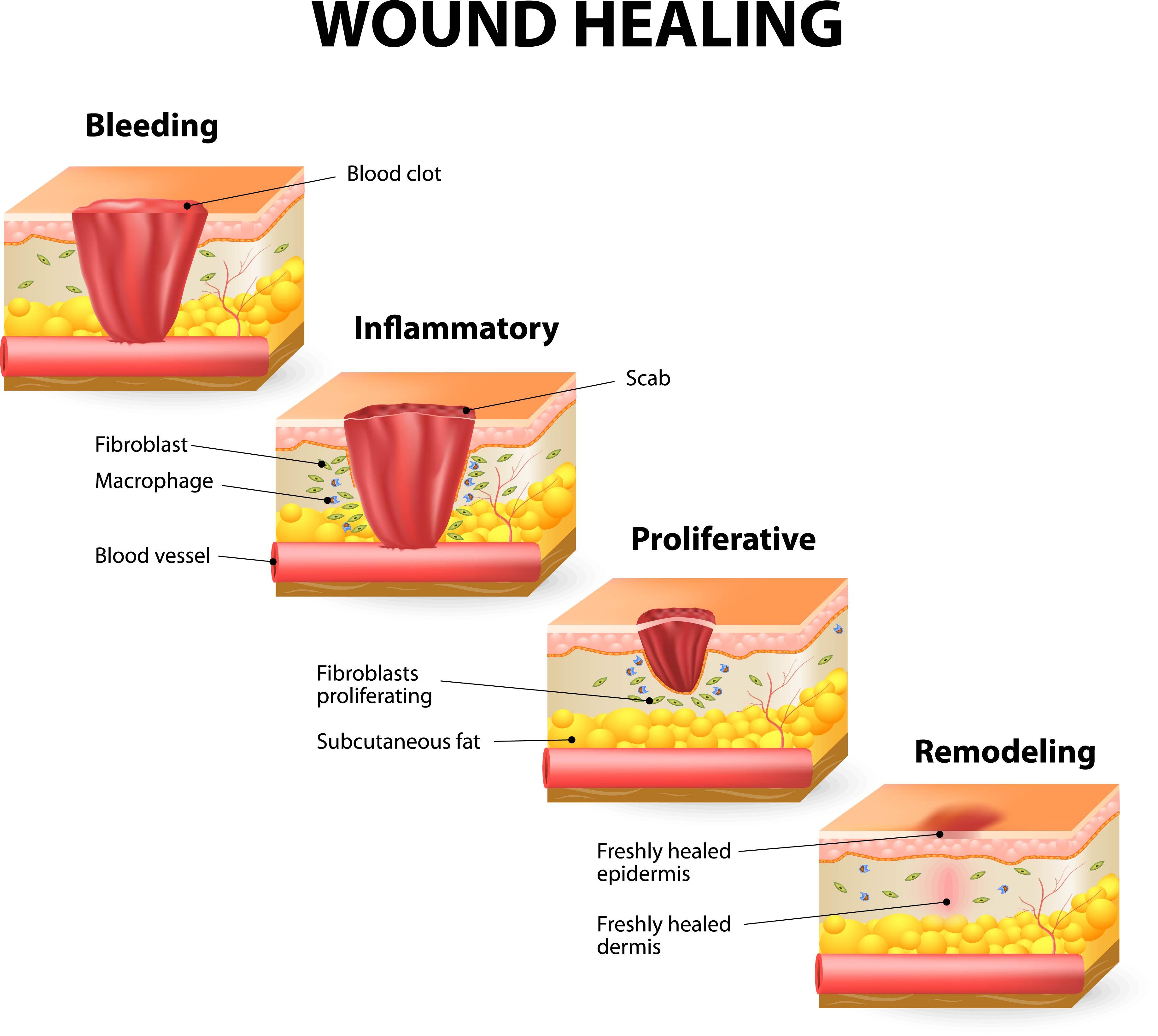 Wound-Healing-Illustration.jpg