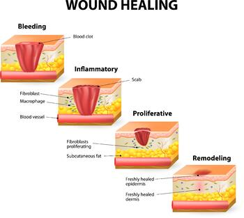 Wound-Healing-Illustration.jpg